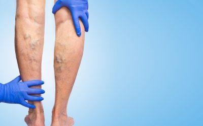 Las varices genitales alteran en gran medida la calidad de vida de las pacientes