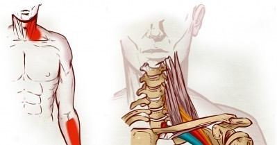 Cuando la costilla comprime la vena subclavia contra la clavícula